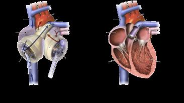 Syncardia TAH Esp