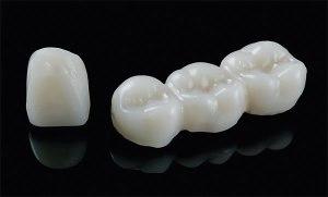 dientes-temporales